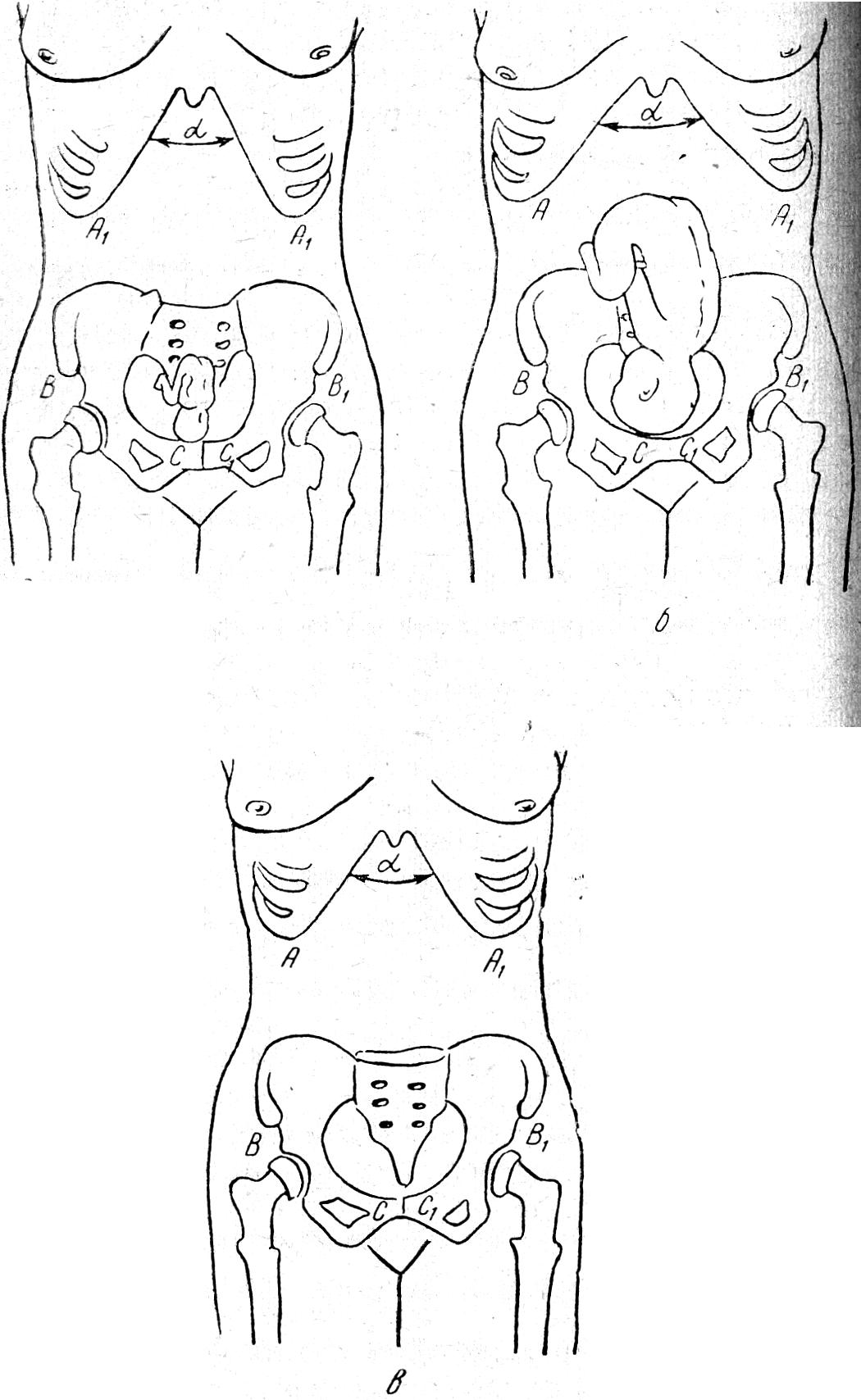 При беременности болит поясница при ходьбе