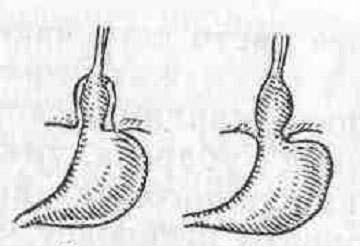 Увеличенный лимфоузел на шее у ребенка болит